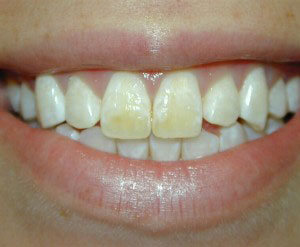 Dental Bonding Before - Dentist Lafayette LA
