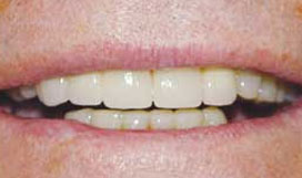 Cosmetic Dentistry After - Dentist Lafayette LA