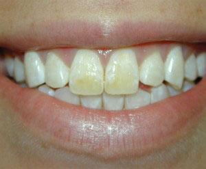 Bonding | Lafayette LA Dentist