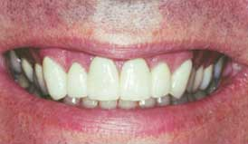 Veneers After - Dentist in Lafayette LA