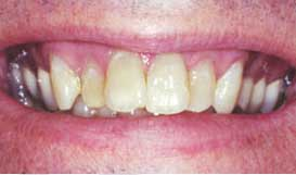 Veneers Before - Dentist in Lafayette LA